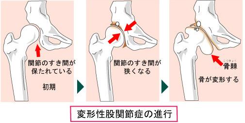 不全 股関節 形成 臼 蓋 変形性股関節症と臼蓋形成不全には筋膜リリースと運動で対策!